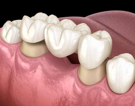 Zahnbrücke von 3 Zähnen über Molaren und Prämolaren. Medizinisch genaue 3D-Darstellung der menschlichen Zahnbehandlung