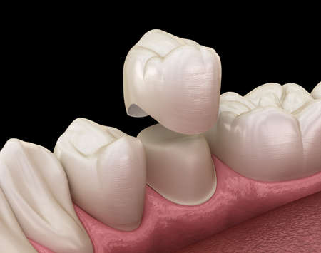 Dental crown premolar tooth assembly process. Medically accurate 3D illustration of human teeth treatment 스톡 콘텐츠 - 123490201