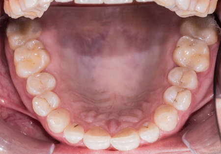 Healthy human teeth - incisors, frontal close up view Stock Photo