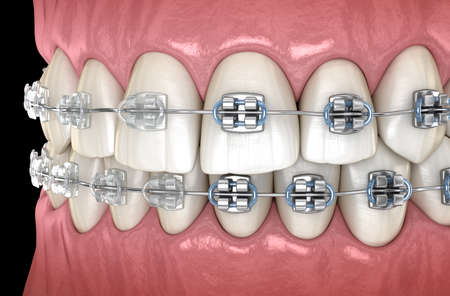 Teeth with metal and Clear braces in gums. Medically accurate dental 3D illustration Stock Photo