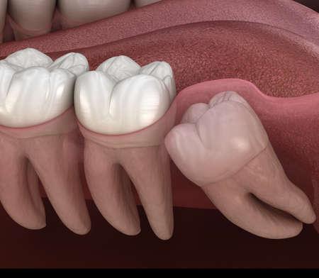 Dientes sanos y muelas del juicio con impactación mesial. Ilustración 3D de diente médicamente precisa Foto de archivo