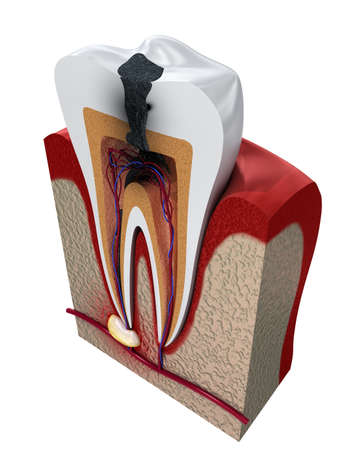 Tooth decay. Medically accurate tooth 3D illustration