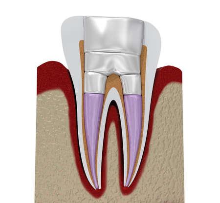 Dental fillings procedure diagramm . 3D illustration Standard-Bild