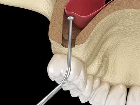 Sinus Lift Surgery - Sinus Augmentation. 3D illustration