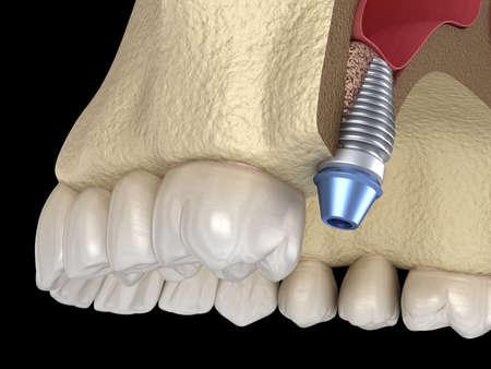 Sinus Lift Surgery - implant installation. 3D illustration
