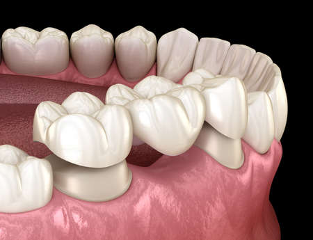 Dental bridge of 3 teeth over molar and premolar. Medically accurate 3D illustration of human teeth treatment Banque d'images - 123735302