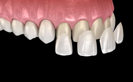 Procédure d'installation du placage sur l'incisive centrale et l'incisive latérale. Illustration 3D de la dent médicalement précise