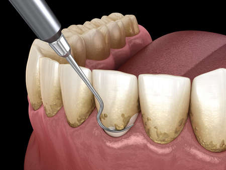 Oral hygiene: Scaling and root planing (conventional periodontal therapy). Medically accurate 3D illustration of human teeth treatment Foto de archivo
