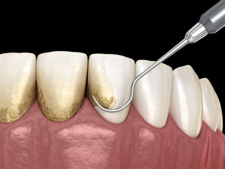 Oral hygiene: Scaling and root planing (conventional periodontal therapy). Medically accurate 3D illustration of human teeth treatment Stock Photo