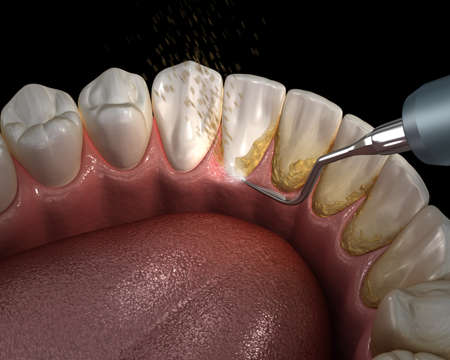 Oral hygiene: Ultrasonic teeth cleaning machine removing calculus and plaque. Medically accurate 3D illustration of human teeth treatment