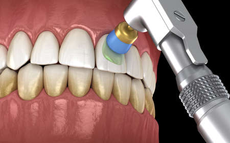 Teeth polishing procedure with professional brush and gel. Medically accurate 3D illustration