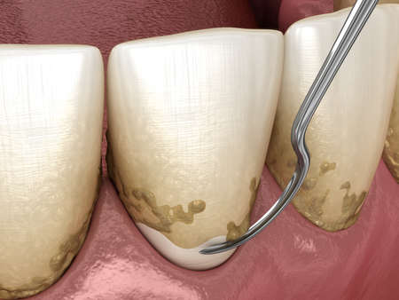Oral hygiene: Scaling and root planing (conventional periodontal therapy). Medically accurate 3D illustration of human teeth treatment Reklamní fotografie