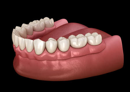 Mandibular removable prosthesis All on 6 system supported by implants.  Medically accurate 3D illustration of human teeth and dentures concept Stock Photo