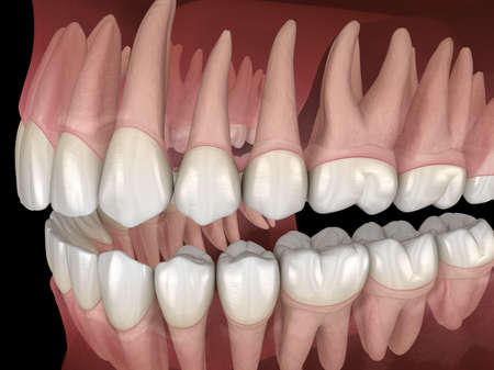 Morphology of mandibular and maxillary human gum and teeth. Medically accurate tooth 3D illustration