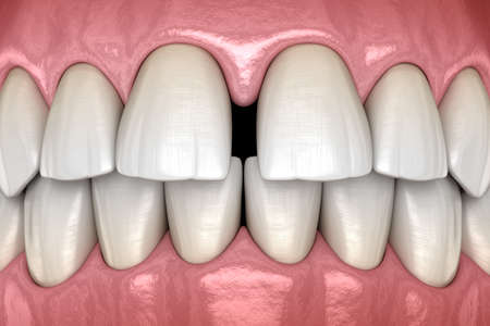 Diastema of central incisors teeth. Dental disfunction 3D illustration concept 스톡 콘텐츠