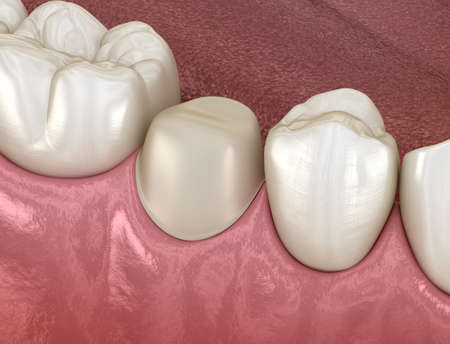 Preparated premolar tooth for dental crown placement. Medically accurate 3D illustration Imagens