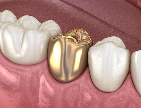 Golden crown premolar tooth assembly process. Medically accurate 3D illustration of human teeth treatment