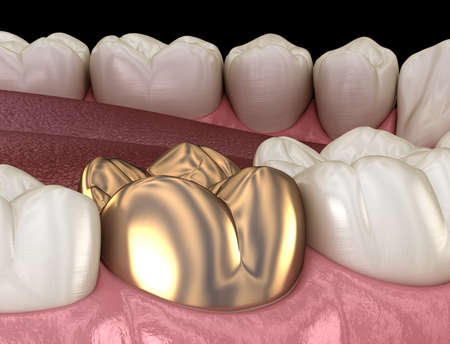 Golden crown molar tooth assembly process. Medically accurate 3D illustration of human teeth treatment Stock Photo