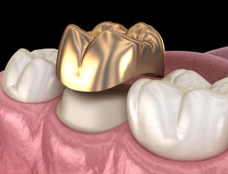 Golden crown molar tooth assembly process. Medically accurate 3D illustration of human teeth treatment Imagens