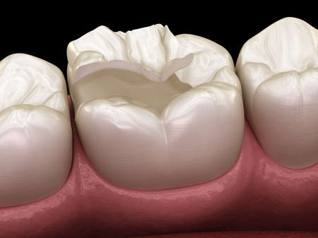 Inlay ceramic crown fixation over tooth. Medically accurate 3D illustration of human teeth treatment 스톡 콘텐츠