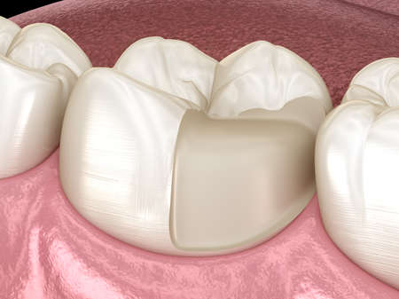 Onlay ceramic crown fixation over tooth. Medically accurate 3D illustration of human teeth treatment