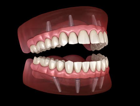 Maxillary and Mandibular prosthesis with gum All on 4 system supported by implants. Medically accurate 3D illustration of human teeth and dentures Banco de Imagens