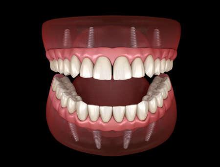 Ober- und Unterkieferprothese mit Zahnfleisch All-on-4-System, das von Implantaten getragen wird. Medizinisch genaue 3D-Darstellung von menschlichen Zähnen und Zahnersatz Standard-Bild