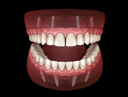 Protesi Mascellare e Mandibolare con gengiva Sistema All on 4 supportato da impianti. Illustrazione 3D medicalmente accurata di denti e protesi dentarie umane Archivio Fotografico
