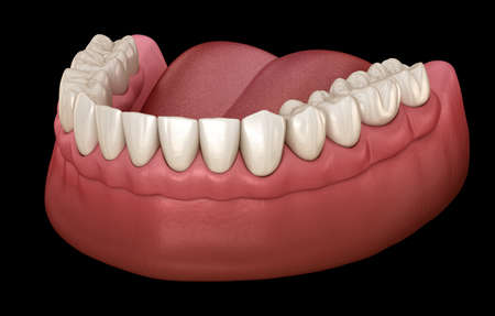 Mandibular prosthesis with gum All on 6 system supported by implants.  Medically accurate 3D illustration of human teeth and dentures concept