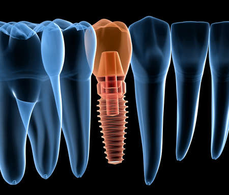Premolar tooth recovery with implant, x-ray view. Medically accurate 3D illustration of human teeth and dentures concept 写真素材