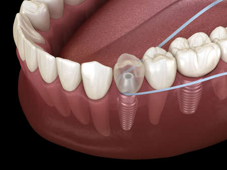 Implant tooth cleaning with dental floss. Medically accurate 3D illustration