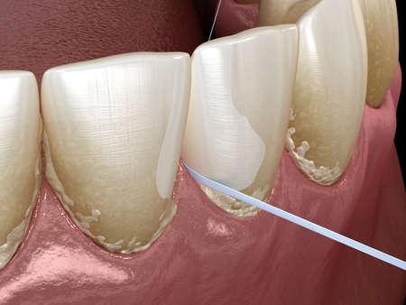 Oral hygiene: using dental floss for plaque removing. Medically accurate dental 3D illustration Reklamní fotografie