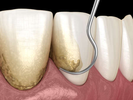 Oral hygiene: Scaling and root planing (conventional periodontal therapy). Medically accurate 3D illustration of human teeth treatment 版權商用圖片