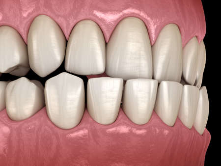 Underbite dental occlusion ( Malocclusion of teeth ). Medically accurate tooth 3D illustration Stock Photo