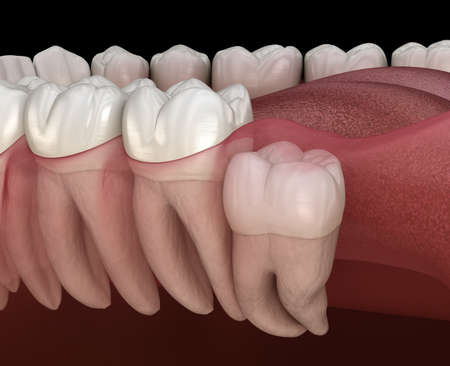 Wisdom tooth with impaction at molar tooth. Medically accurate tooth 3D illustration