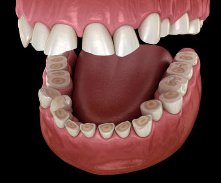 Dental attrition (Bruxism) resulting in loss of tooth tissue. Medically accurate tooth 3D illustration