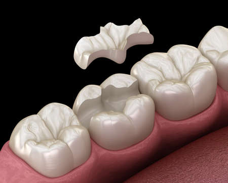 Inlay ceramic crown fixation over tooth. Medically accurate 3D illustration of human teeth treatment Reklamní fotografie