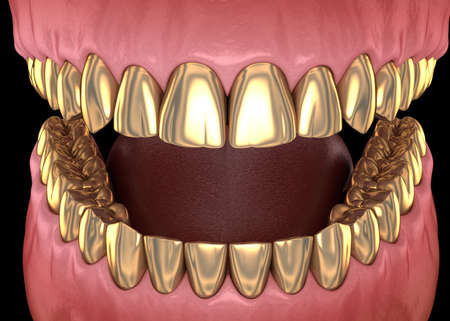 Golden teeth crowns over natural teeth. Medically accurate 3D illustration of human teeth treatment