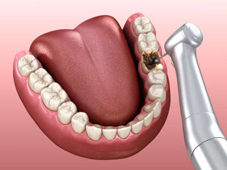Caries removing process. Medically accurate tooth 3D illustration.