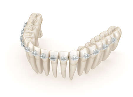 Teeth and Clear braces. 3D illustration concept Standard-Bild - 130664949