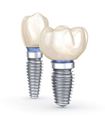 Implantes dentales. Concepto de ilustración 3D de dientes humanos