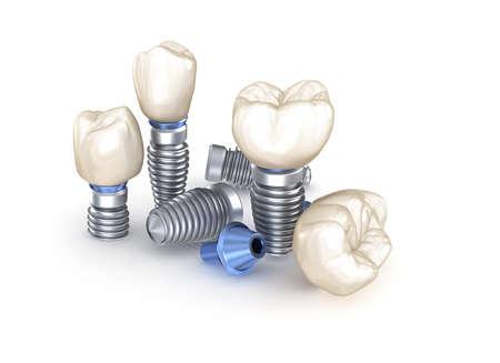 Dental Implants. 3D illustration concept of human teeth