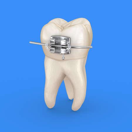 Tooth and metal braces. 3D illustration concept Standard-Bild - 130664957