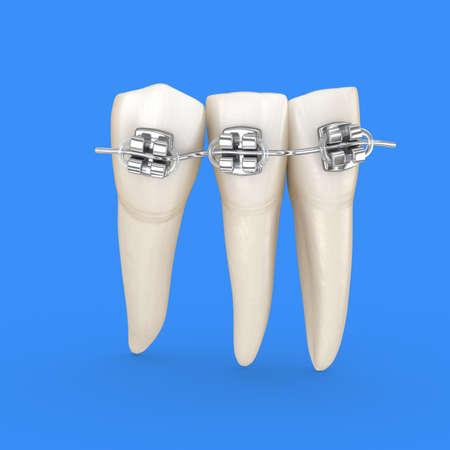 Teeth set and metal braces. 3D illustration concept Standard-Bild - 130664963