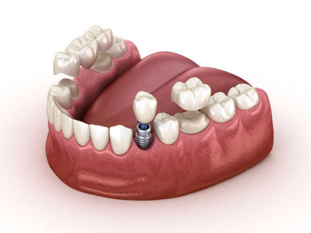 Tooth recovery with implant and crown. Medically accurate 3D illustration dental concept. Фото со стока
