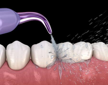 Irrigator, Wasserzahnreinigung. Medizinisch genaue 3D-Darstellung der Mundhygiene. Standard-Bild