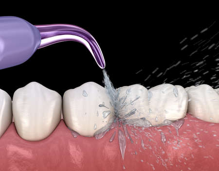 Irrigator, Water teeth cleaning. Medically accurate 3D illustration of oral hygiene.