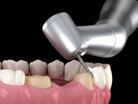 Premolar preparation process for dental crown placement. Medically accurate 3D illustration