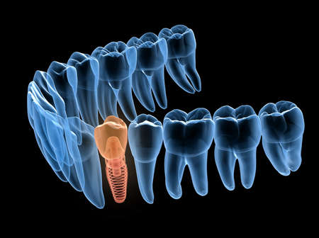 Premolar tooth recovery with implant, x-ray view. Medically accurate 3D illustration of human teeth and dentures concept Фото со стока