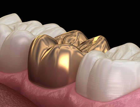 Golden crown molar tooth assembly process. Medically accurate 3D illustration of human teeth treatment Stock fotó